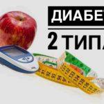 Сахарный диабет 2 типа. Симптомы и лечение.