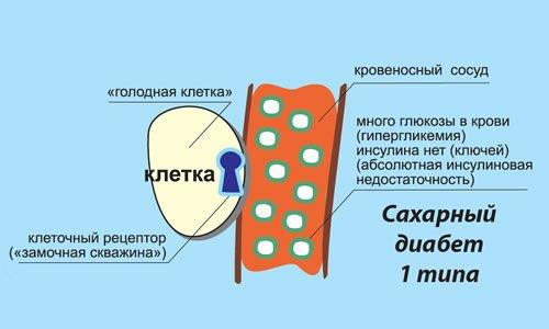 tipy saharnogo diabeta