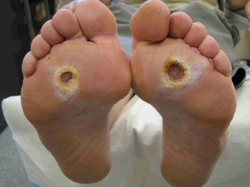 Диабетическая стопа при неправильном выборе носков при диабете