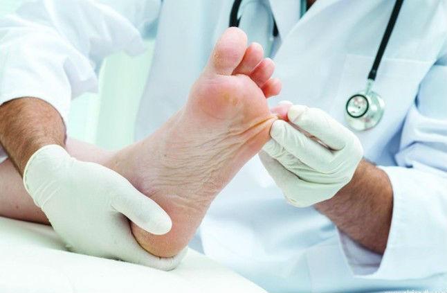 Врач осматривает стопы пациента с диабетической стопой при диабете