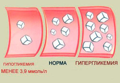 Патологией для диабетика считается не только повышенный сахар, но и гипогликемия (его снижение)