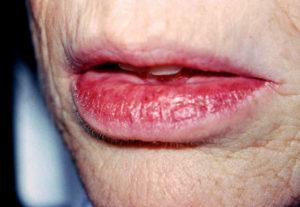 потрескавшиеся губы от сухости во рту