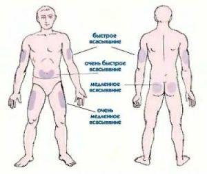 схема инъекций инсулина