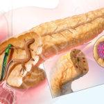 Симптомы рака поджелудочной железы: диагностика и методы обнаружения