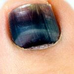 Почему почернели ногти, пальцы, ноги при диабете