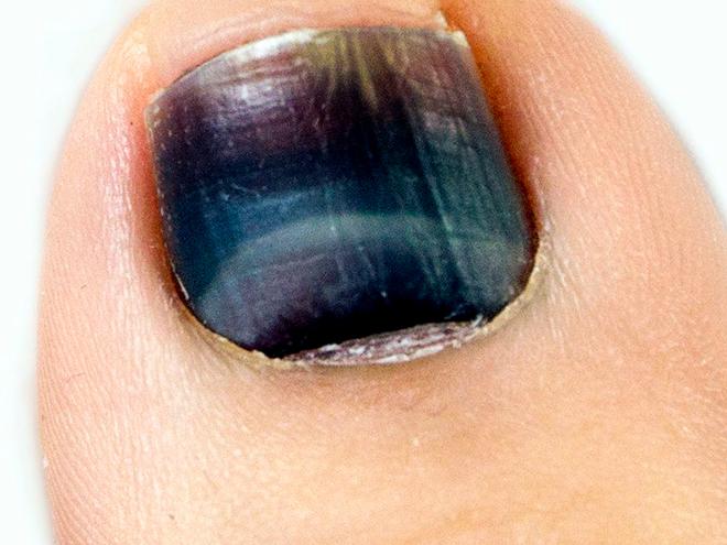 черный ноготь на пальце ноги при диабете
