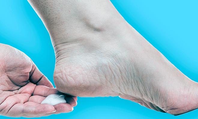 диабетик наносит крем на ступню с натоптышами